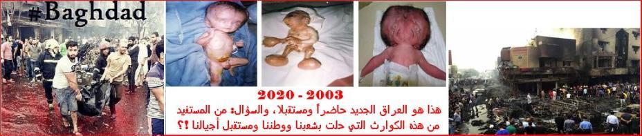 أطفال العراق بعد الحرب